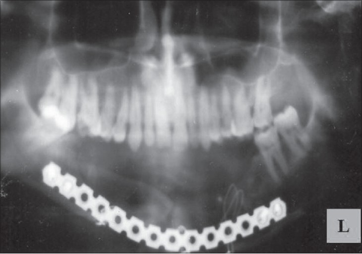 Figure 6: Post-operative OPG revealing mandibular resection and subsequent reconstruction