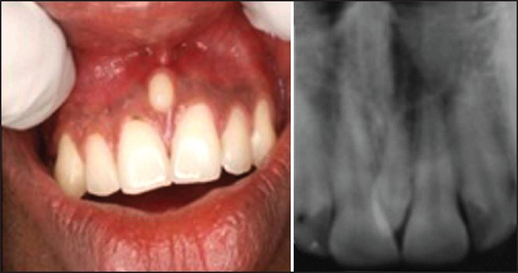 Figure 1: Clinical photograph and periapical radiograph of conical variety of supernumerary tooth (mesiodens)