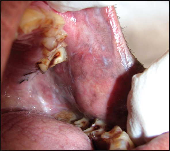 Prevalence Of Oral Premalignant Lesions And Conditions In