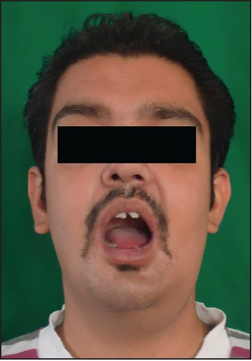 Figure 7: Postoperative picture after two months, with normal mouth opening