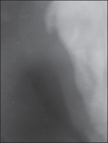 Figure 3: Occlusal radiographic fi lm showing fractured zygomatic arch