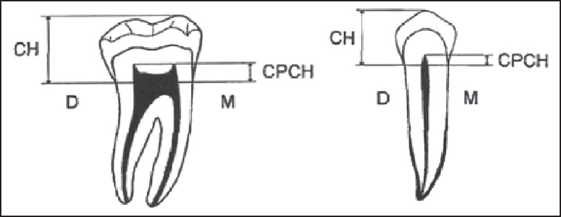 Figure 1: Schematic representation of measurements taken off a panoramic radiograph with a digital caliper to 0.01 mm