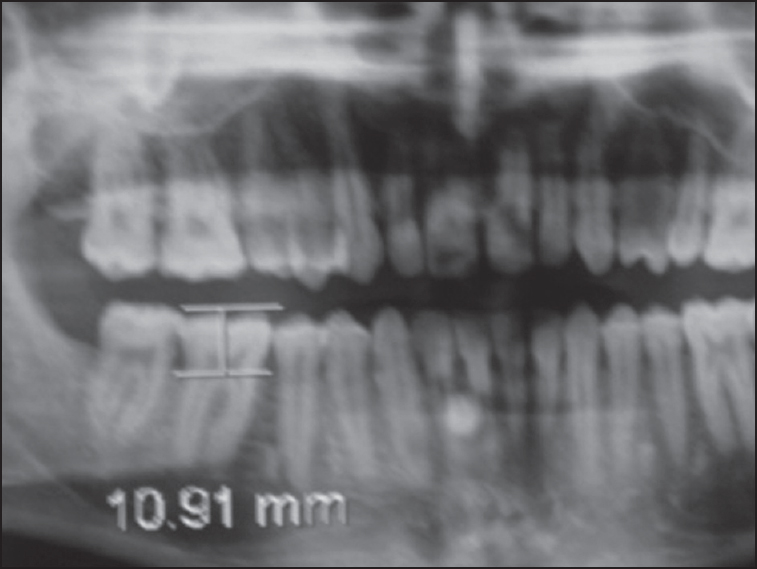 Figure 2: Coronal height (CH) of molar tooth