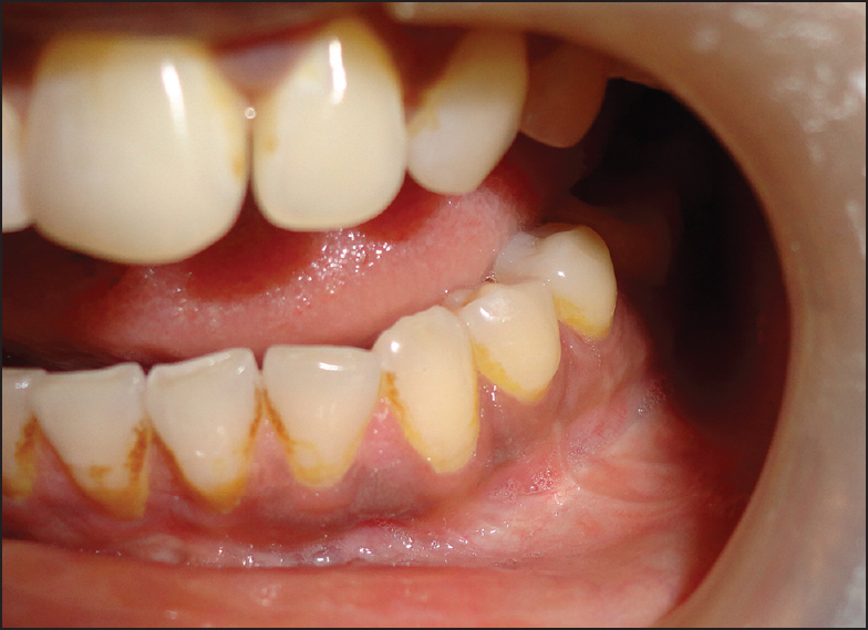 Central Ossifying Fibroma Of Mandible A Case Report And Review Of