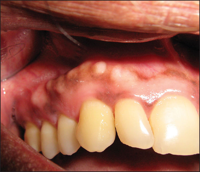 Prevalence Of Gingival Fibrous Nodule In South Indians Srivathsa Sh