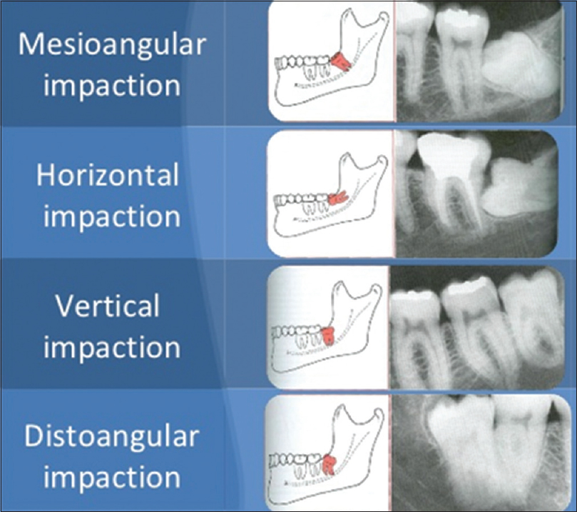 techniques for extraction of impacted lower third molars Extraction of impacted mandibular third molars: postoperative complications   materials and methods: data were collected prospectively for all patients who.