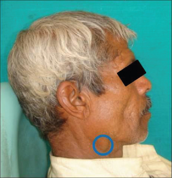 Figure 1: Facial profile showing swelling in submandibular region