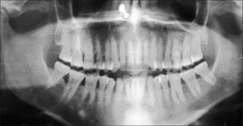 Figure 2: Panoramic radiograph showing idiopathic osteosclerosis in right mandibular molar region