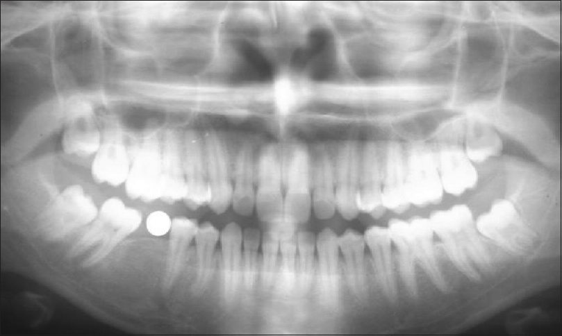 A comparative study of digital radiography, panoramic radiography