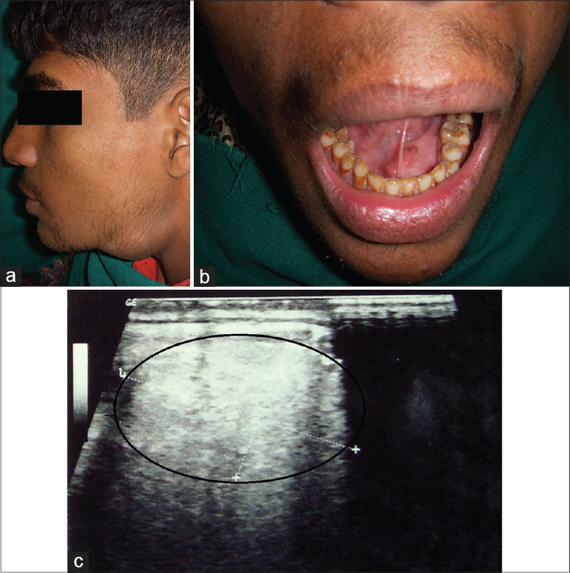 Figure 1: (a) Profile view, extraoral swelling involving left submandibular area. (b) Intraoral swelling involving floor of the mouth on left side. (c) Hyperechoic mass anterolateral to submandibular gland region