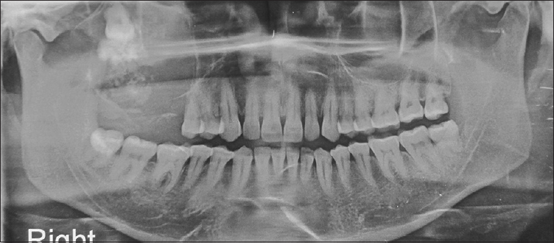 Figure 2: Orthopantomograph revealing an impacted third molar at the infraorbital region, healed extraction sockets in the molar region, and radiopaque-lucent areas in the region of third molar
