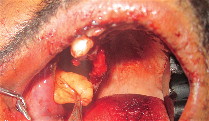Figure 3: Excision of the lesion completely under local anesthesia