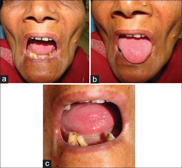 Oral Submucous Fibrosis – The Indian Scenario: Review and