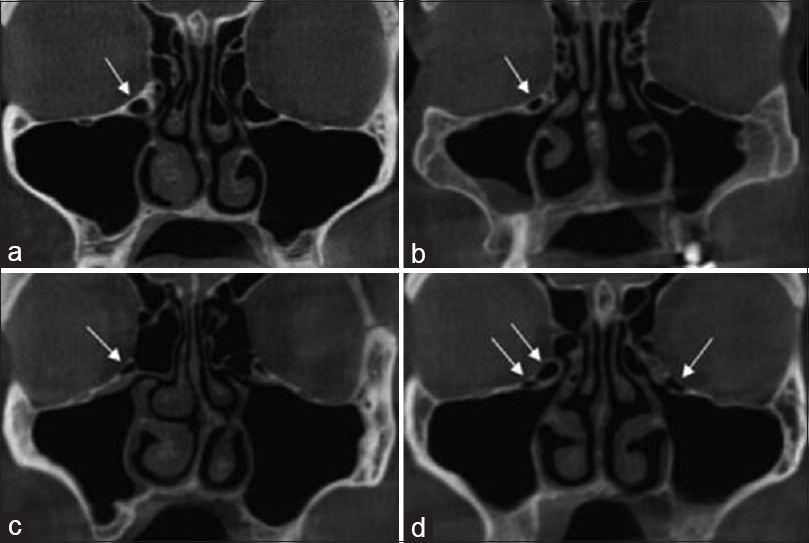 Figure 2: Coronal cone beam CT shows different shapes of Haller cells, (a) Round, (b) Oval, (c) Triangular, (d) Multiple and bilateral Haller cells