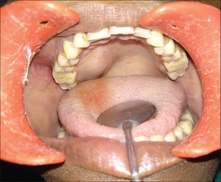 Figure 2:  Intraoral image of patient showing intraoral swelling