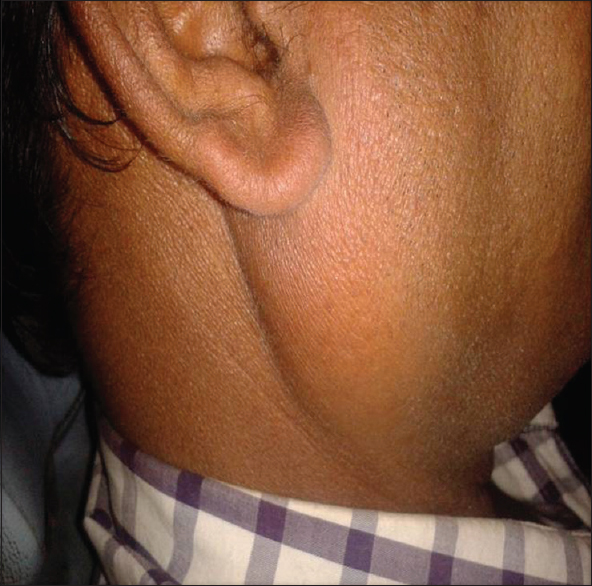 Figure 2:  Showing right parotid enlargement (6 × 3 cm supero-inferiorly)