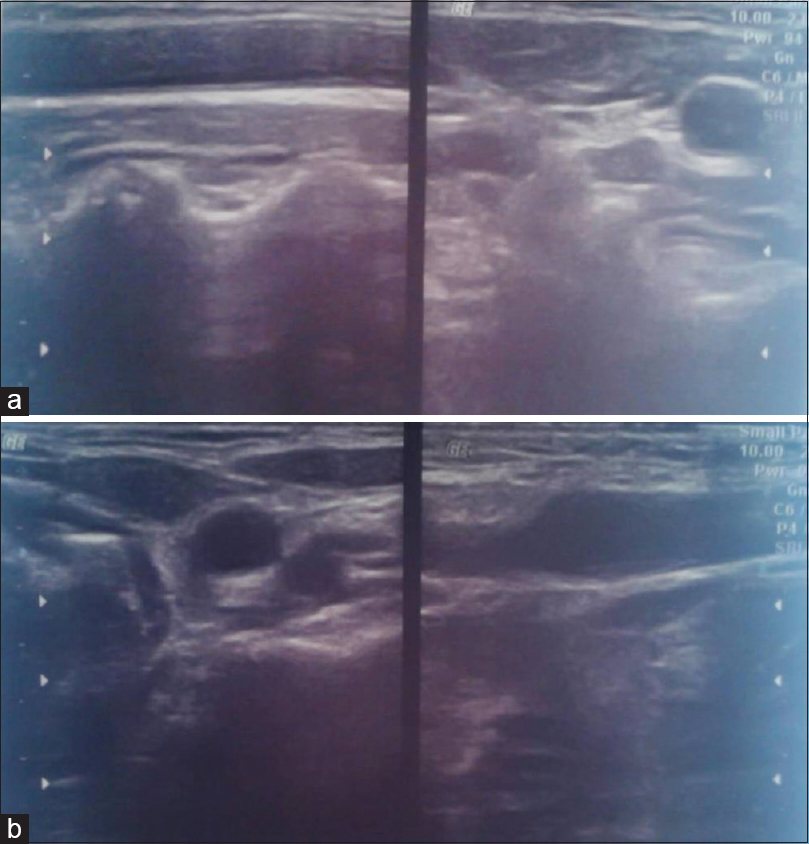 Figure 4:  (a) Showing sonography of neck region. (b) Showing sonography of neck region