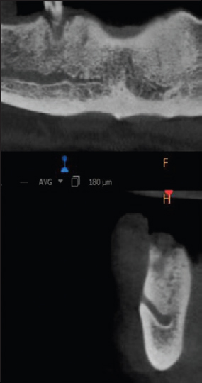 Figure 3: Type 1 (Mandibular incisive canal starting before the opening of the mental foramen)
