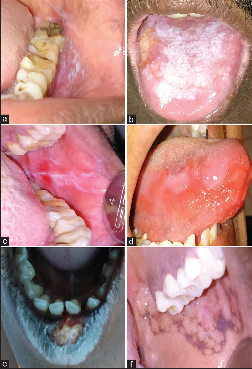 Figure 1: Clinical picture showing different types of LP. (a) Reticular. (b) Plaque-like. (c) Erythematous. (d) Ulcerative. (e) Actinic type. (f) Lichen planus pigmentosus