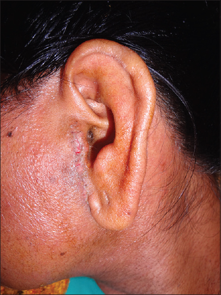 Figure 11: Post surgical healing after 1 month in left preauricular region