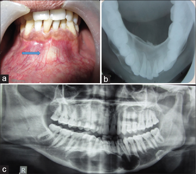 Journal of Indian Academy of Oral Medicine and Radiology