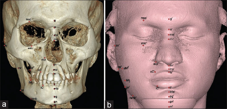 Figure 4: Three-dimensional reconstructions of the skull and the face. a) Hard tissue Landmarks depicted on the skull surface - Midline: glabella (g); nasion (n); midnasal (mn); rhinion (rhi); subnasal (sn); midphiltrum (mp); labrale superius (ls); labrale inferius (li); mentolabial sulcus (mls); pogonion (pg); gnathion (gn); menton (m). Lateral: mid supraorbital (mso); mid infraorbital (mio); alare curvature point (acp); gonion (go); zygion (zy); supra canine (sC); infra canine (iC); supra molar 2 (sM2); infra molar 2 (iM2); mid ramus (mr) and mid mandibular border (mid-mandibular border). b) corresponding Soft Tissue Landmarks depicted on the soft tissue surface having same abbreviations but with 'dash' superscripted