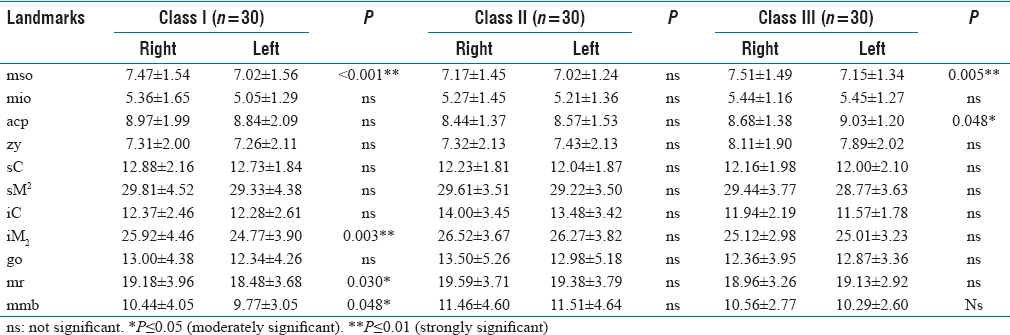 Table 2: Comparison of bilateral facial soft tissue thickness measurements in each skeletal class