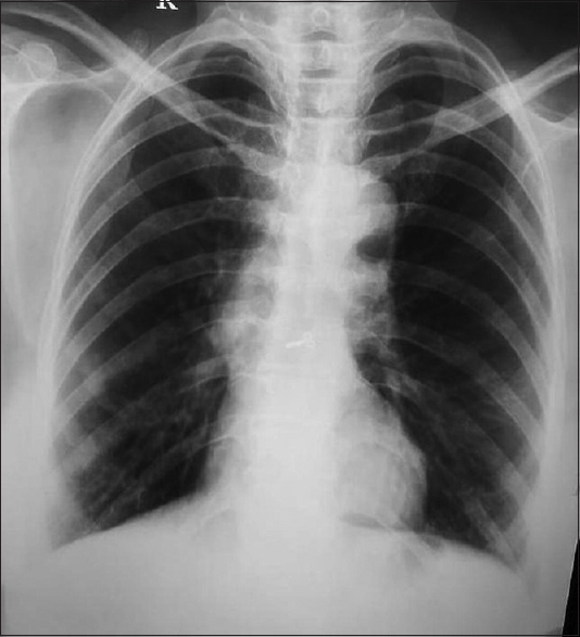 Figure 4: Chest radiograph shows no signs of consolidation