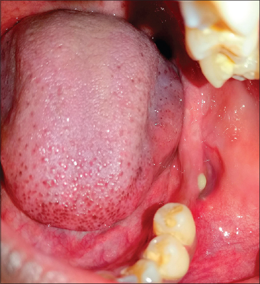 Figure 2: Pus discharge from the buccal alveolar mucosa